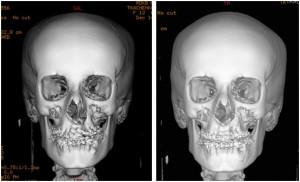 Расщелина альвеолярного отростка при лечении расщелины губы и нёба