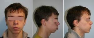 Деформация челюстей после лечения расщелины губы и нёба