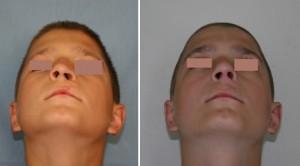 Деформация носа и губы после лечения расщелины губы