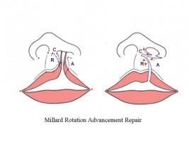 Устранение расщелины губы